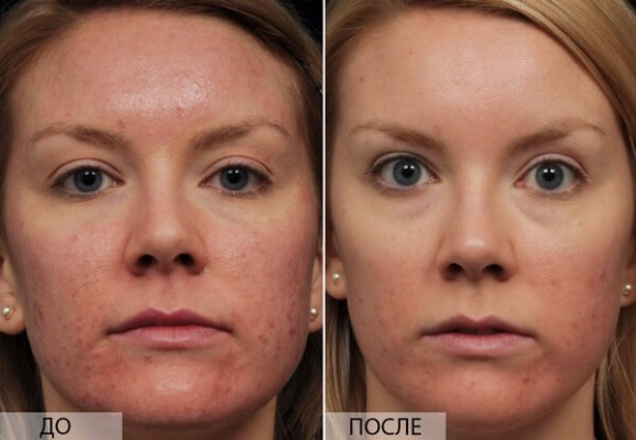 лактофильтрум отзывы для кожи фото